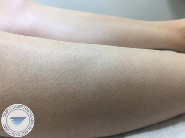 laser hair removal women legs after