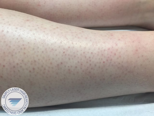 laser hair removal women legs before