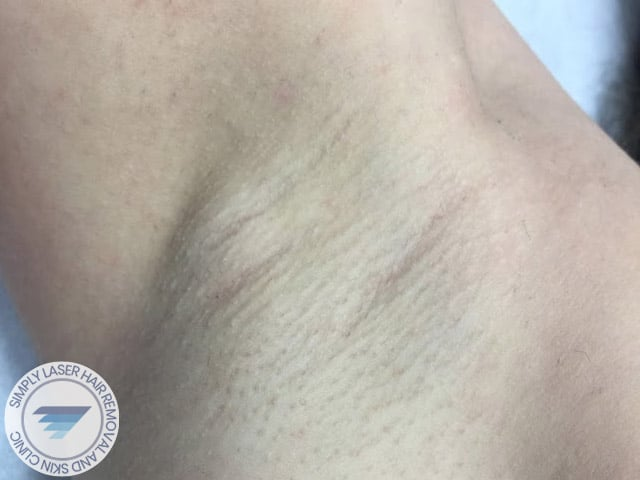 women underarms after