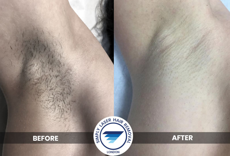 Laser Hair removal for underarms