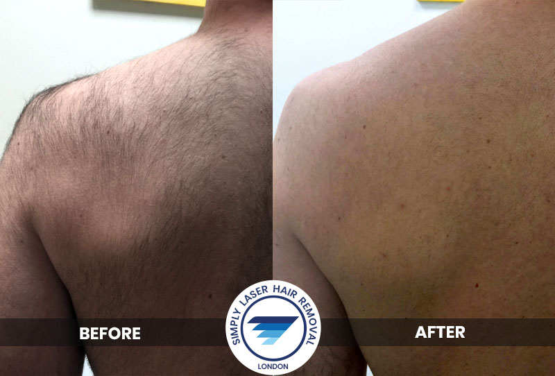 Laser Hair Removal for Shoulders