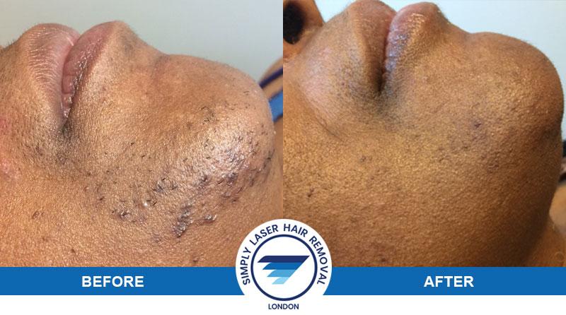 Laser hair removal for dark skin types